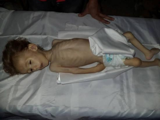 A child in Moadamiya who didn't survive the regime's starvation campaign