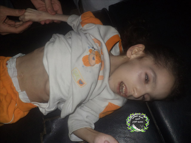 Duaa al Sheikh, a 7-year-old Syrian girl in Moadamia, died due to malnutrition on Friday.