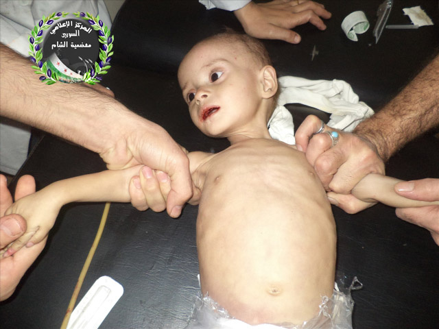 One-year-old Rana, who starved to death